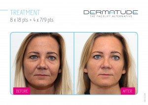 Dermatude, the Facelift Alternative